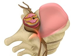 Hernia discal lumbar