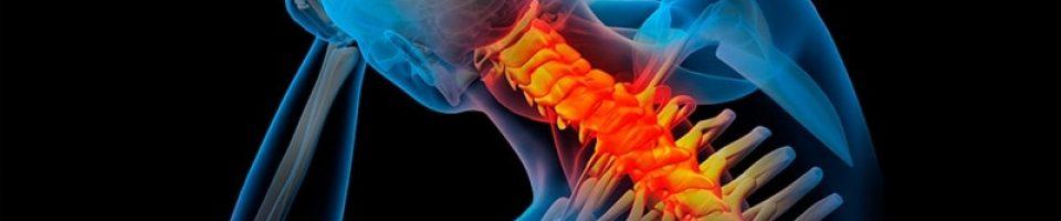 cirujano de columna vertebral